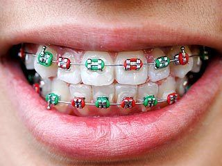 "The ""tightening"" of braces can also be fun and colorful because the rubber bands used with braces now come in an array of hues that can be changed with each appointment. Patients can coordinate the color of their bands with their school colors, a particular holiday or even their changing moods. Braces are now even worn as a fashion statement nowadays!"