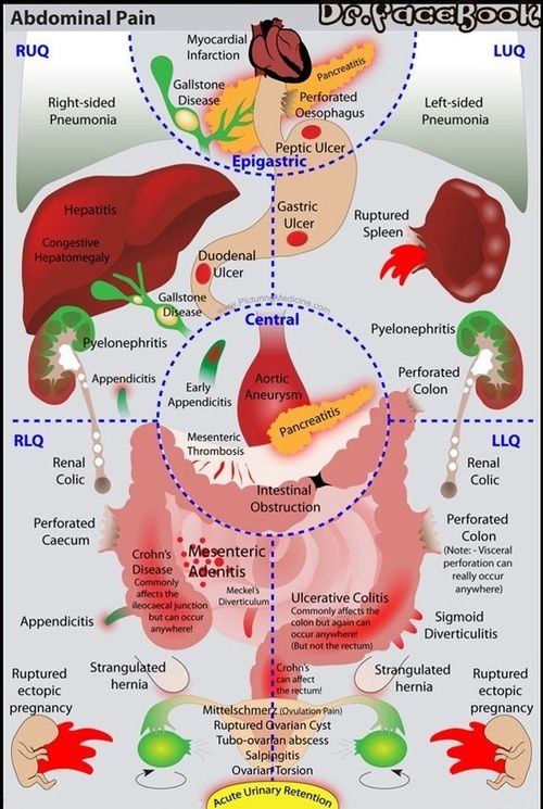 Thenursingblog charts figures know your abdominal pains rn