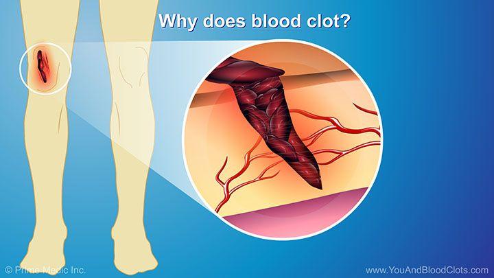 6246b99fec88c59eee1b6eb93bc6b3ff - How To Get Rid Of Blood Clots In Uterus