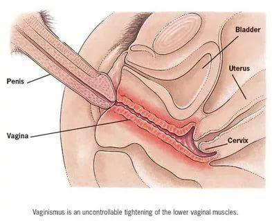 penis in vingina