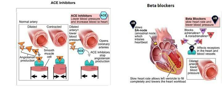 the direct effects of hypertension on the heart Direct vasodilators, including minoxidil and hydralazine (see table: direct vasodilators for hypertension), work directly on blood vessels, independently of the autonomic nervous system minoxidil is more potent than hydralazine but has more adverse effects, including sodium and water retention and hypertrichosis, which is poorly tolerated by .