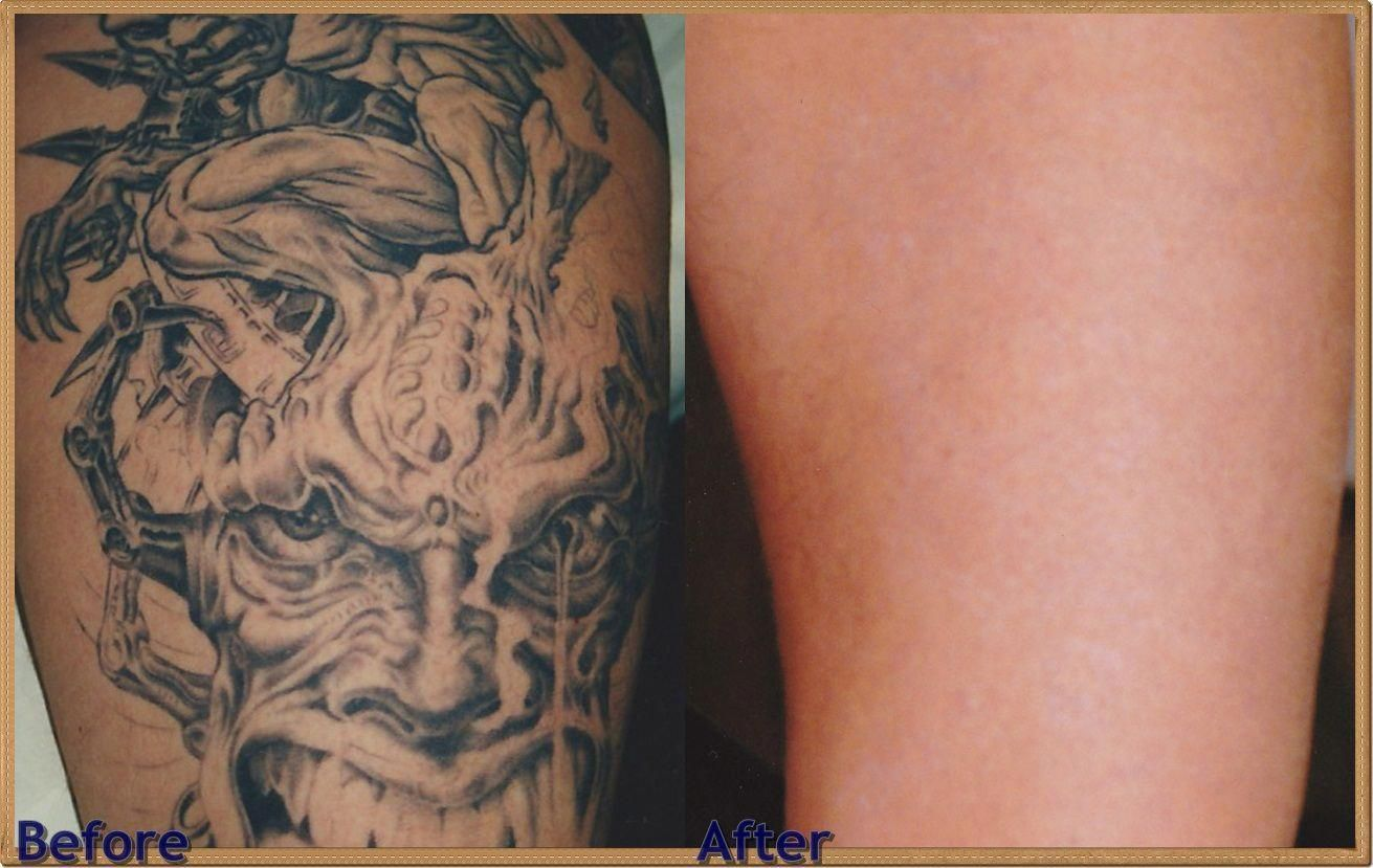 My tattoo removal experience — Beauty & the Blonde