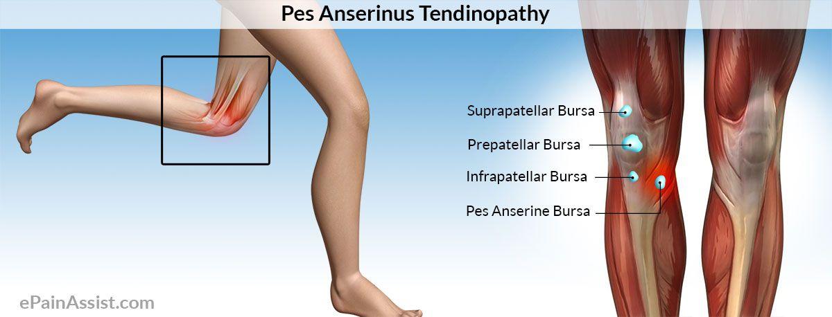 Pes Anserine Bursitis Or Pes Anserine Tendinopathy Anatomy