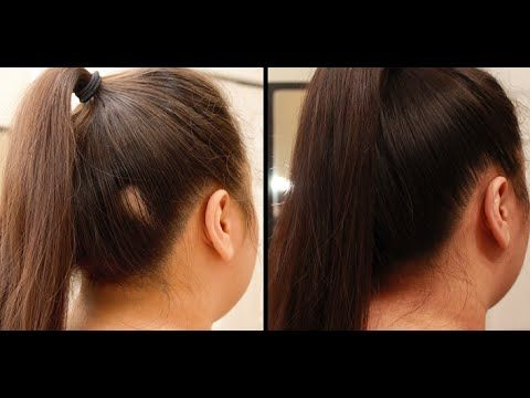 Part 2 Hiding Alopecia Bald Spots Spray On Hair Hairstyle To Cover Any Bald Spot Alopecia Hairstyles Hair Stylea Hairstyles For Thin Hair