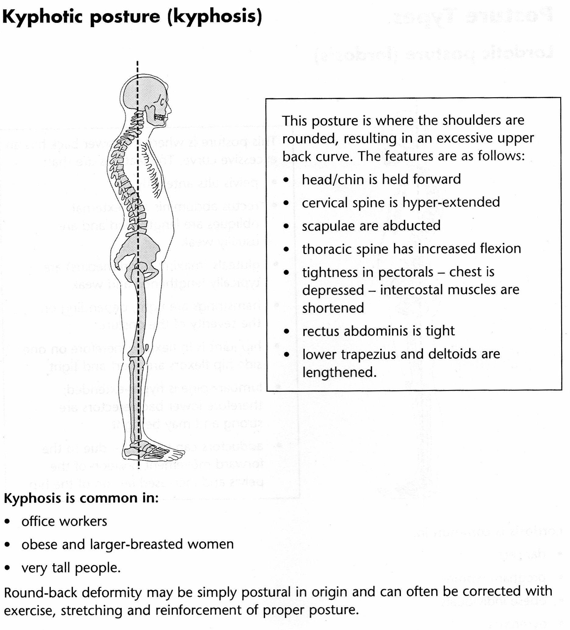 Kyphotic Posture Posture Pinterest