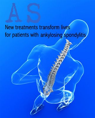 AS: New treatments transform lives for patients with ankylosing spondylitis