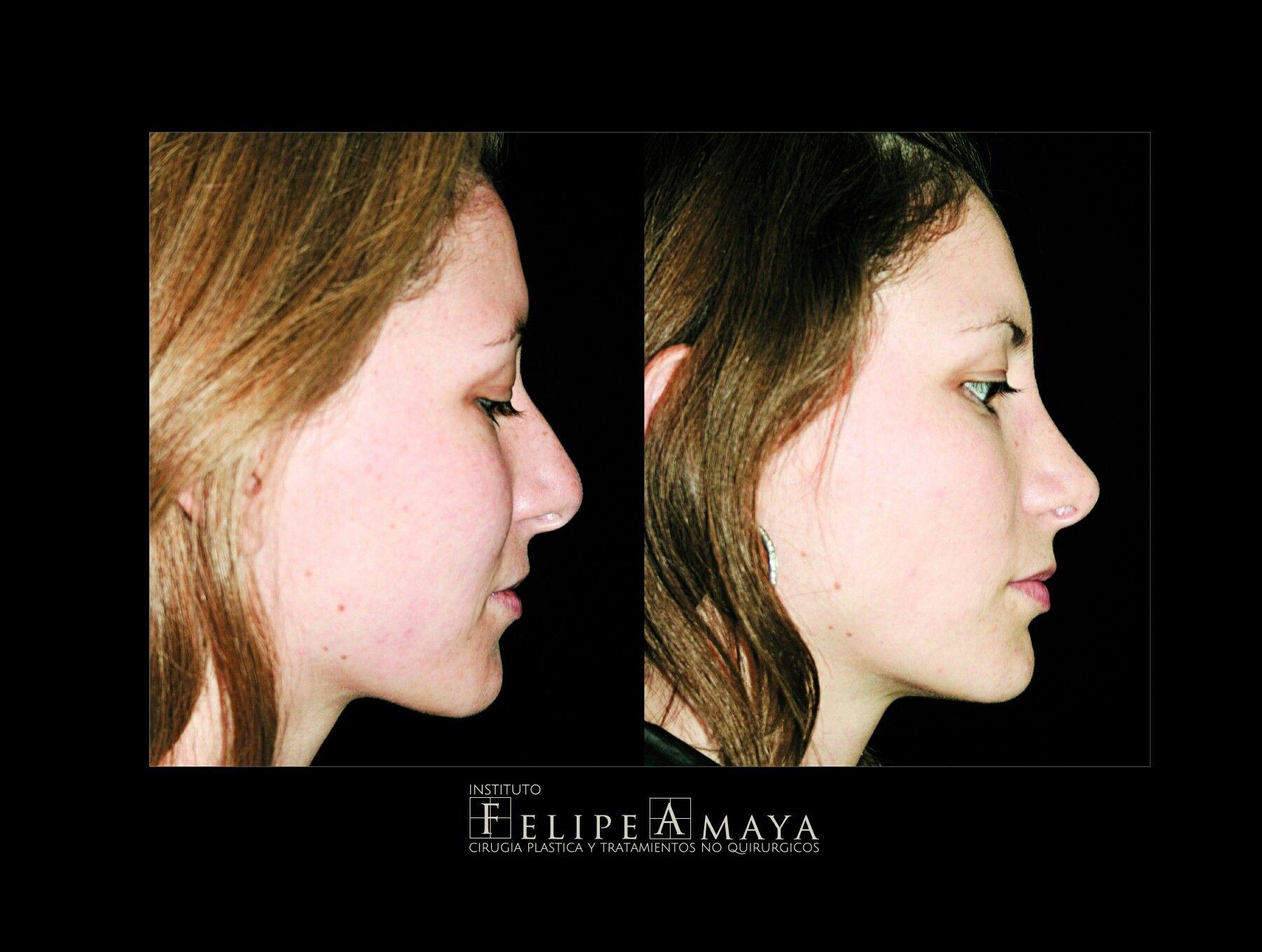 Cirugía de nariz, resultados naturales sin estigmas de cirugía www ...