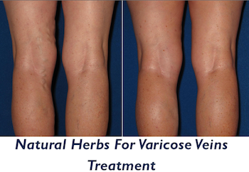 how to cure varicose veins naturally