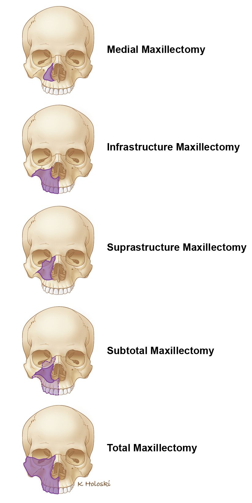 Maxillectomy is the removal of all or part of maxilla bone(s ...