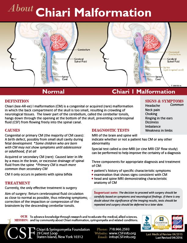 chiari malformation research paper Introduction canine chiari-like malformation (cm) and syringomyelia (sm) are two closely linked conditions that are often recorded as a single entity (driver and others 2013.