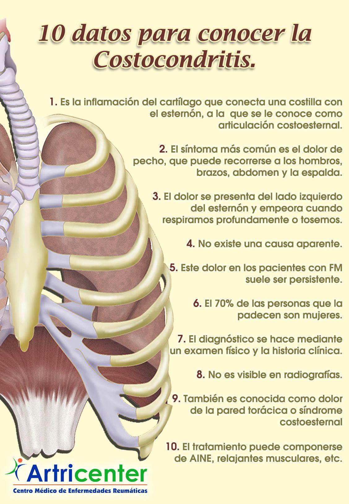 Conoce la Costocondritis en 10 datos | Pinterest | Fibromialgia ...
