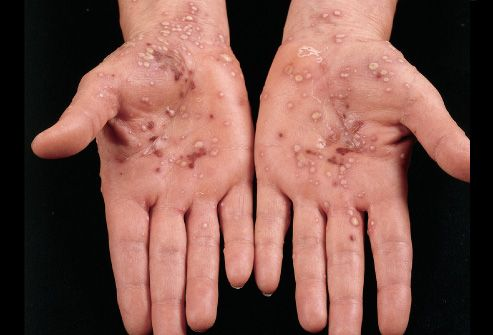 Know #Palmar #Eczema successfully treated with #Homoeopathy  Hand #dermatitis is particularly common in industries involving cleaning, catering, metalwork, hairdressing, healthcare and mechanical work.  #Health #Fitness #SkinCare #Skin #DrySkin  http://bit.ly/1HZvgBt