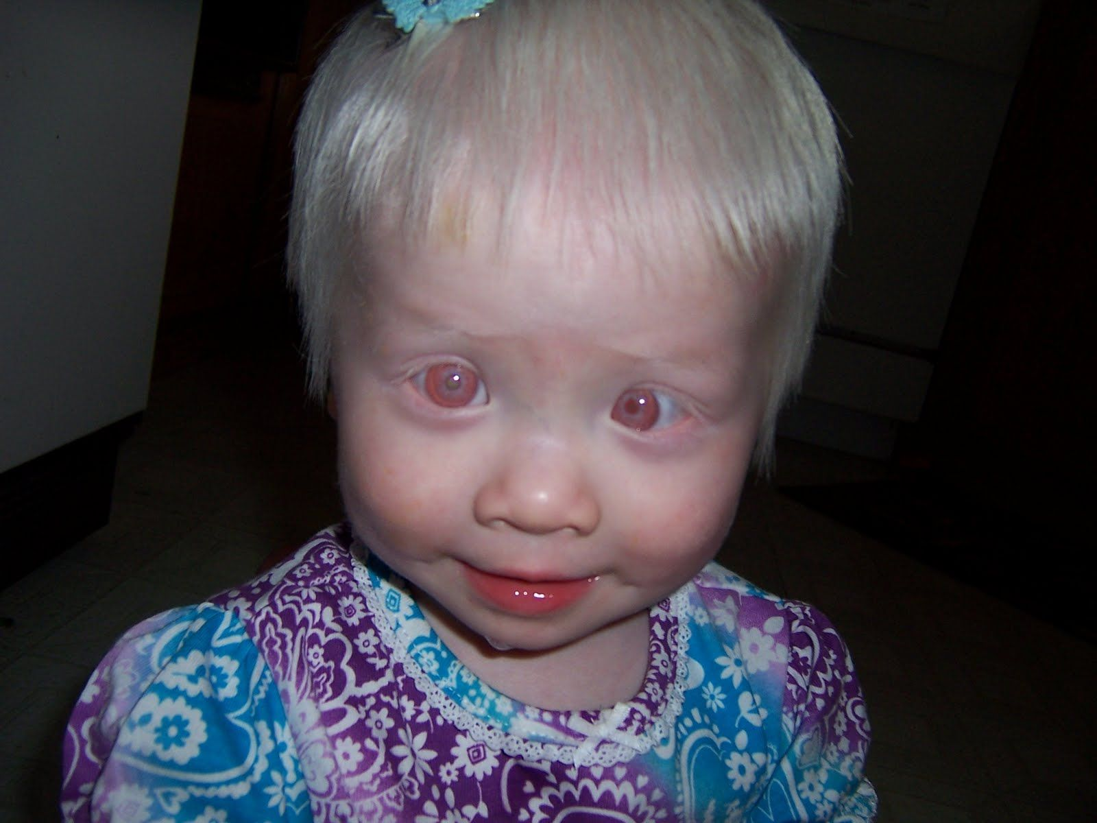 Pictures people of albino