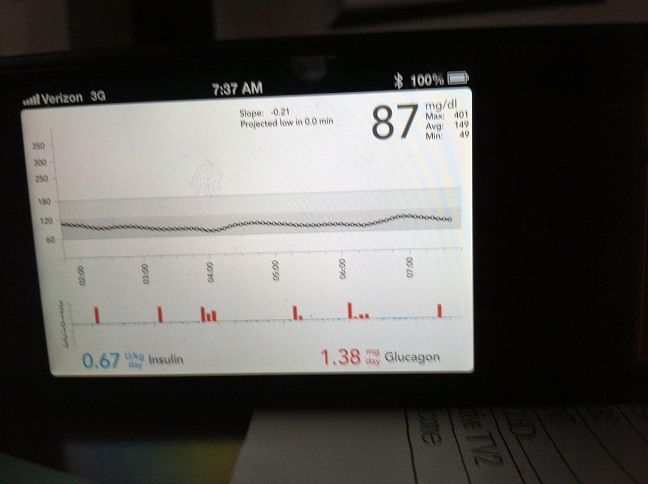 Bionic Pancreas Clinical Study: A Patient Reports