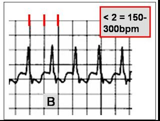 NCLEX Review: EKG's made EZ. Where was this when I was