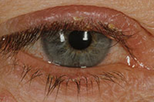 Ocular Rosacea May Include Any Of The Following Eye