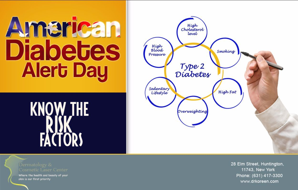 march 28 is american diabetes alert day a reminder to protect your
