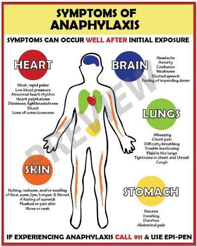Allergy Emergency - Anaphylaxis Symptoms Poster | School ...