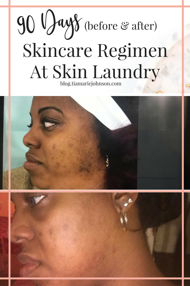Why I Get My Facial Laser Treatments At Skin Laundry Skin