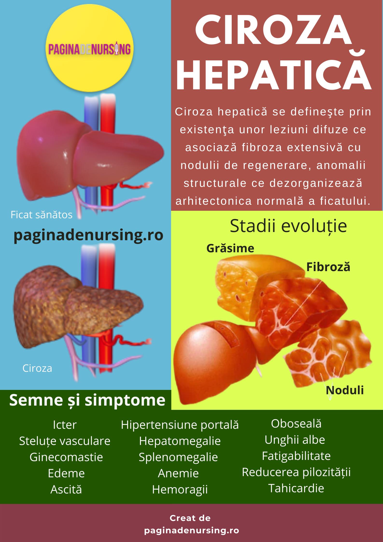 varicoză cu boală hepatică