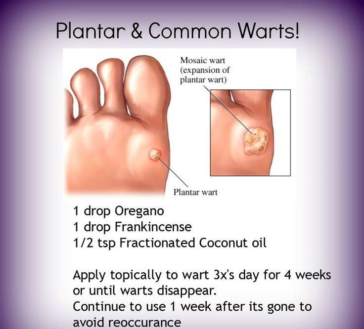 How To Remove Filiform Warts Naturally