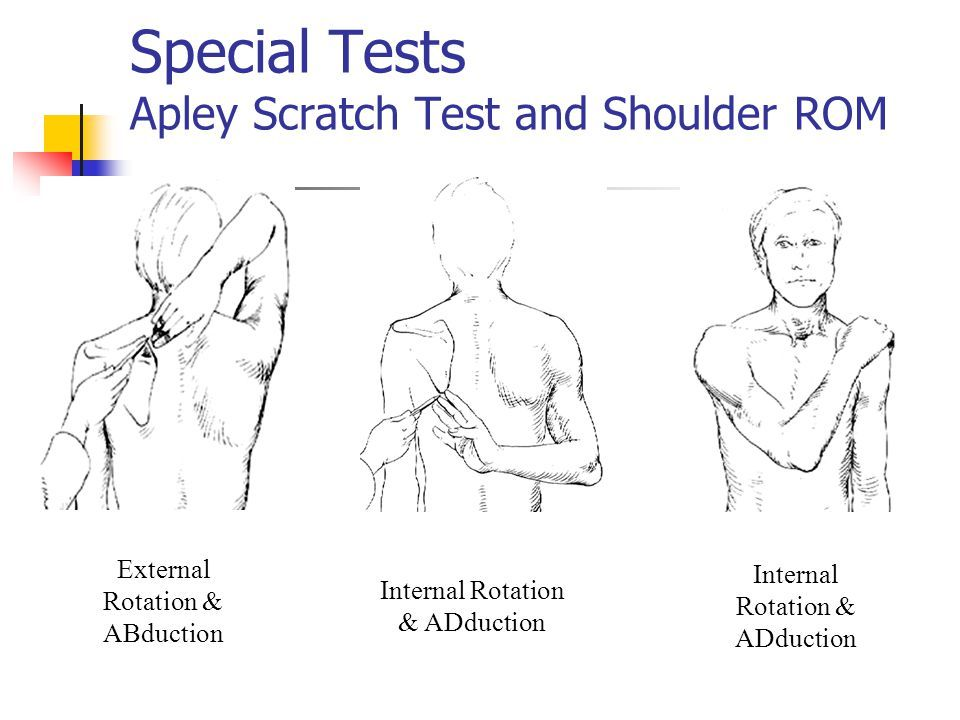 special test for upper limb pdf