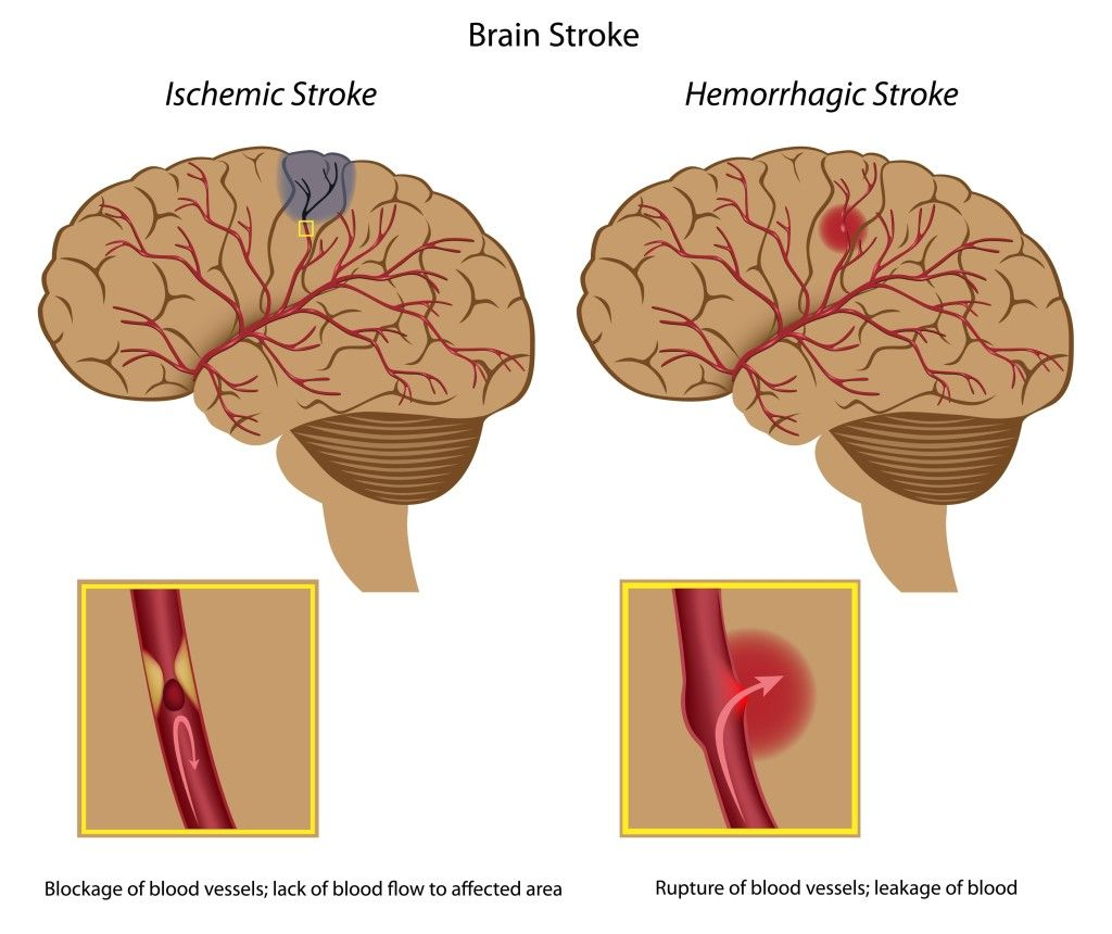 Difference betweeen an ischemic stroke and a hemorrhagic stroke