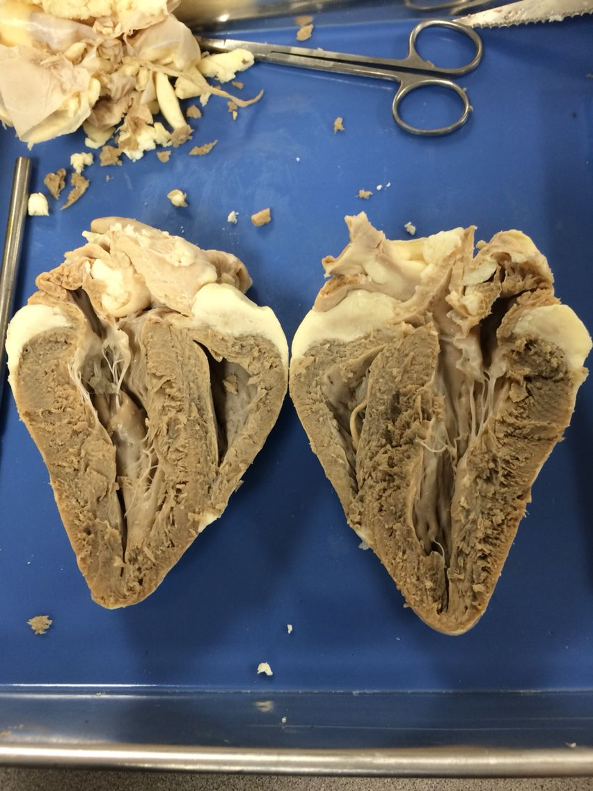 Anterior And Posterior Coronal Section Of Sheep Heart From