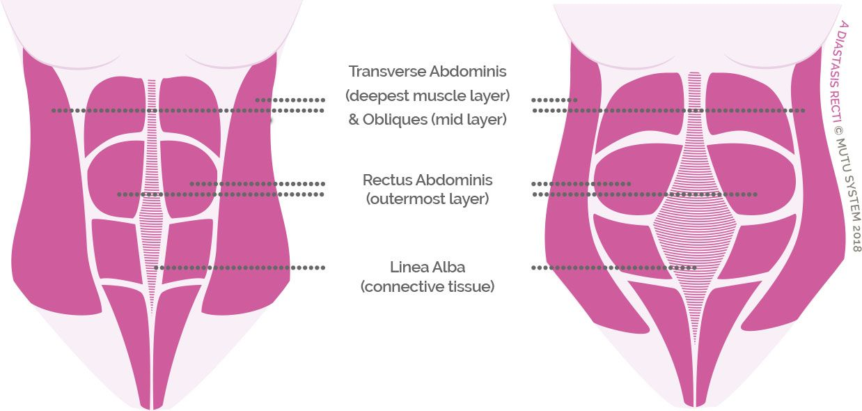 Diastasis recti test what is it and how do i know if i