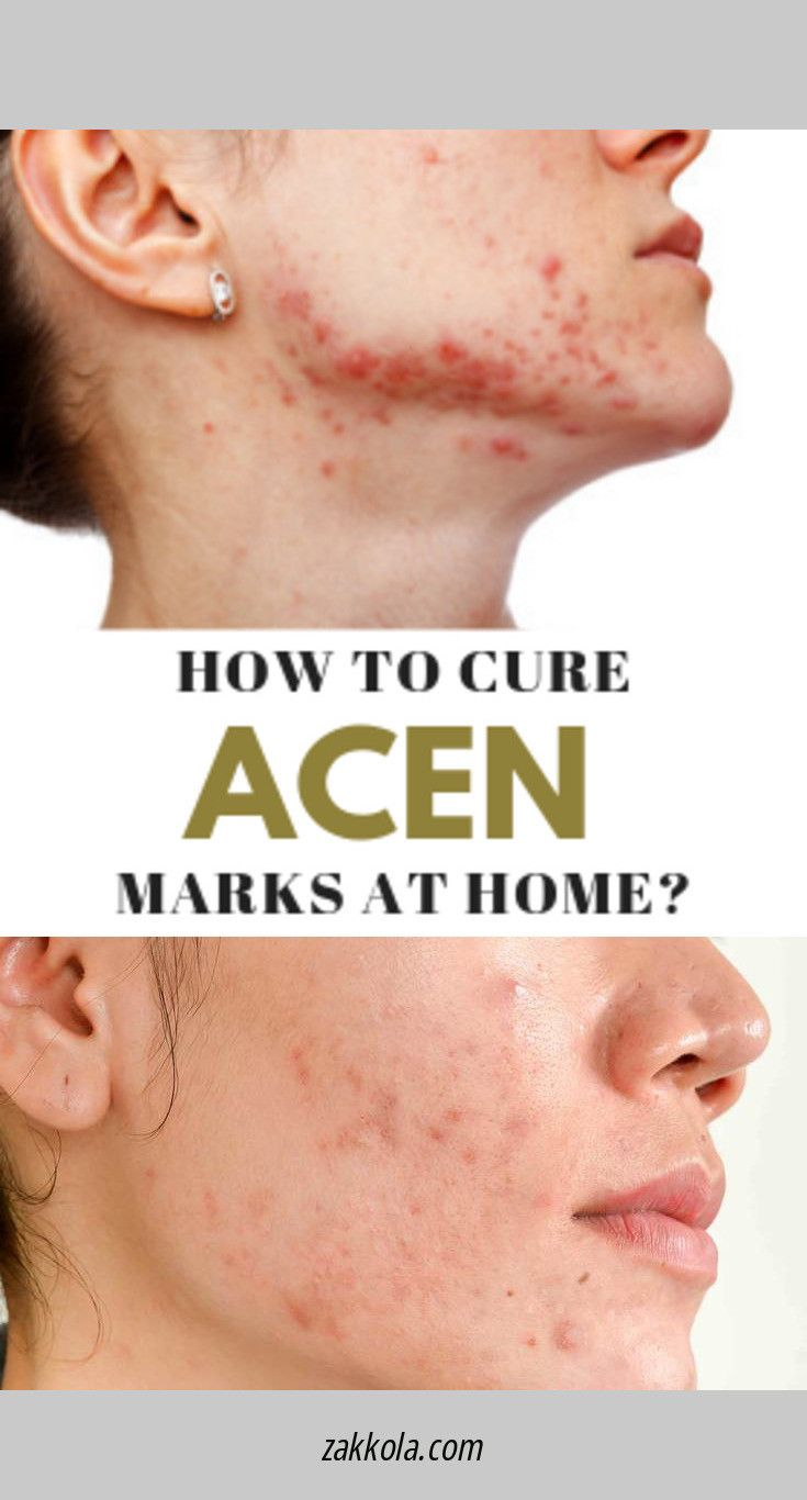 Home Remedies For Acne Scar Red Scar With Step By Step Picture