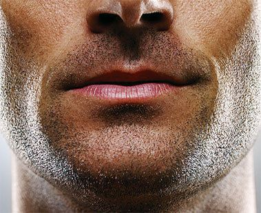 permanent facial hair removal methods
