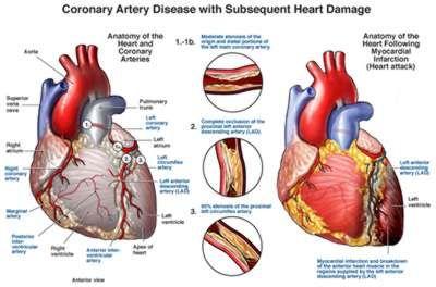 Coronary heart disease anatomy physiology pinterest heart coronary heart disease ccuart Choice Image