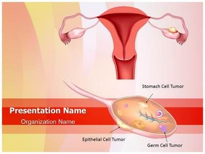 Check out our professionally designed ovarian cancer ppt template check out our professionally designed ovarian cancer ppt template download our ovarian cancer powerpoint presentation toneelgroepblik Image collections