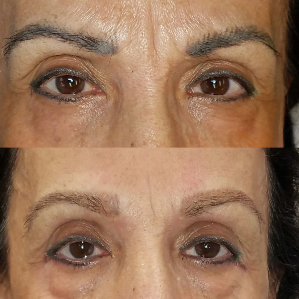 The correction and removal procedures we perform are a