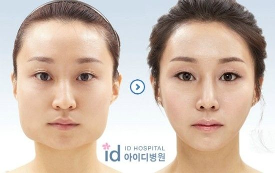 31 Crazy Before And After Photos Of Korean Plastic Surgery 9gag