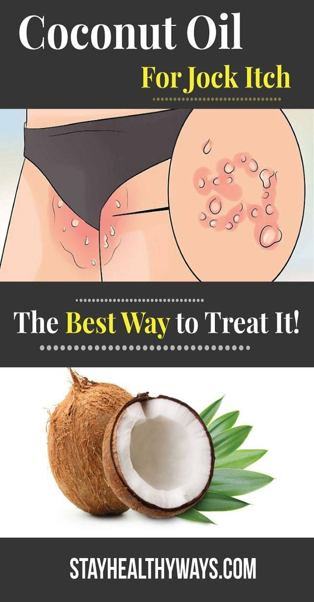 62a2d5f3037cb694fea92d43e6a94343 - How To Get Rid Of Jock Itch Without Medication