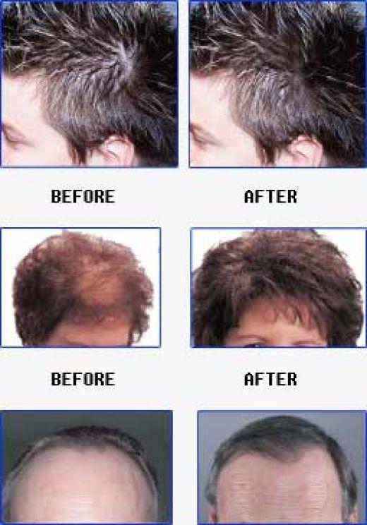 Best Hair Loss Shampoo Http Www Arganlifeproducts Com Hairfall