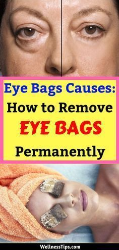 Bags Causes: How to Remove Eye Bags Permanently