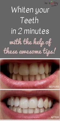 Whiten Your Teeth with the help of these awesome tips