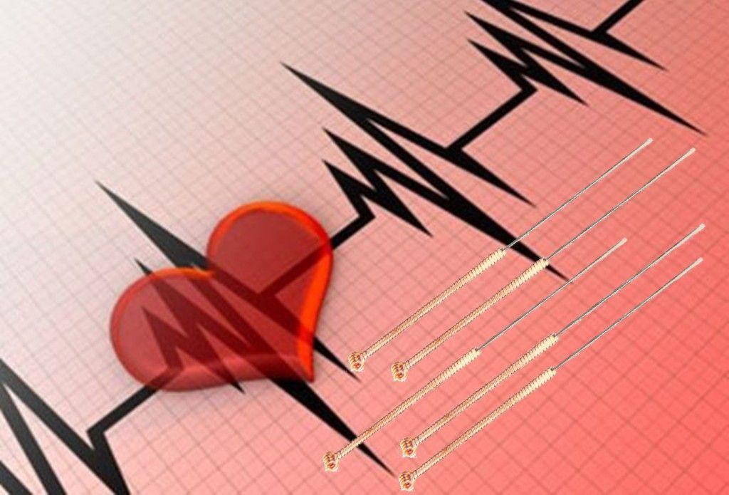 aritmie_cardiaca_acupunctura