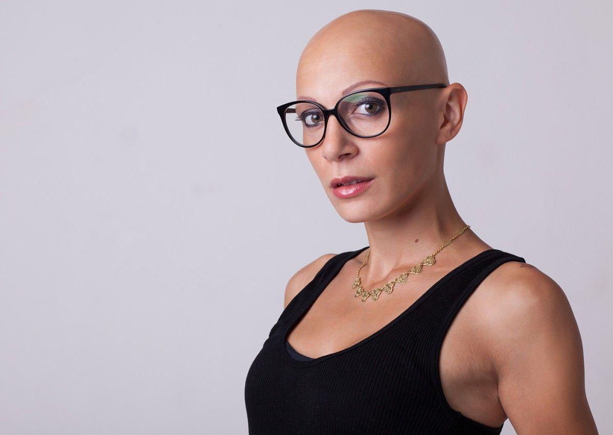 Wanted | Bald head women, Bald women, Bald girl