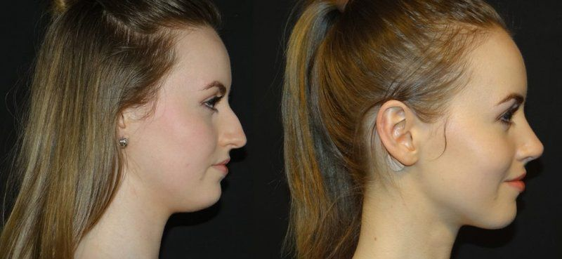 the female Rhinoplasty before and after gallery and let us know if you have questions about our surgical procedures!