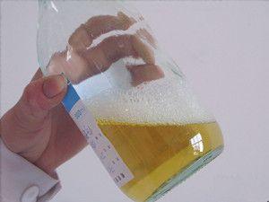 علاج التهاب الكلى مع بروتين في البول بالاعشاب والطب البديل الصين Kidney Disease Kidney Disease Recipes Kidney Disease Symptoms