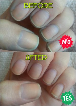 Protip How To Get Rid Of Stained Nails Diy Stained