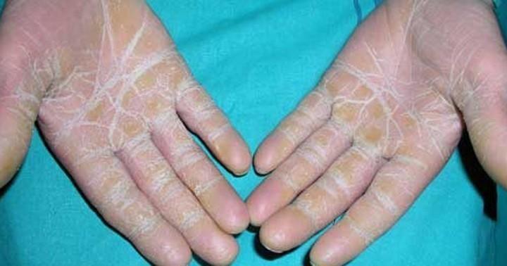 dermatitis en los dedos remedios caseros
