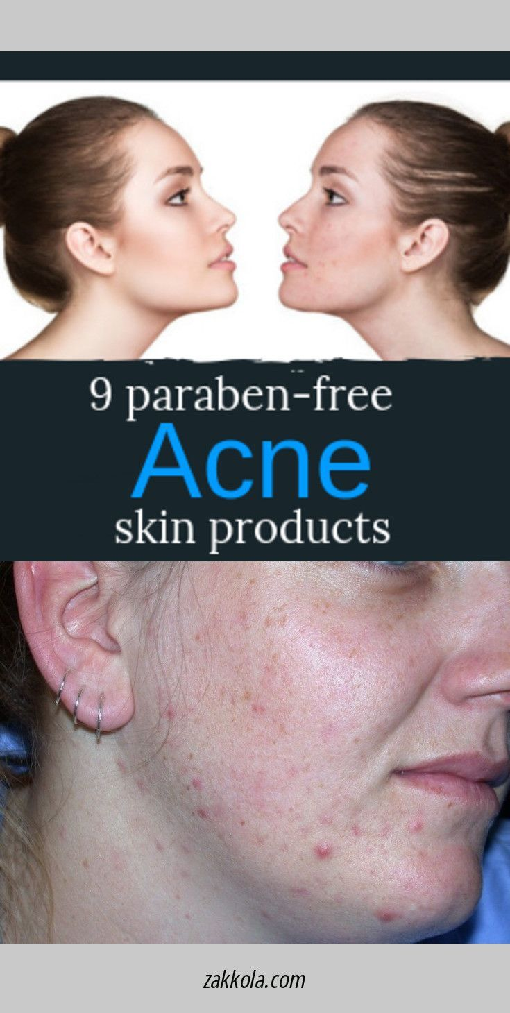 Go to the webpage to read more about acne. Just click on the link…