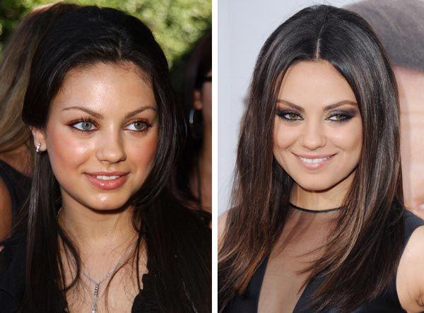 Kim Kardashian Nose Job   Celebrity Nose Jobs (Rhinoplasty) Before & After