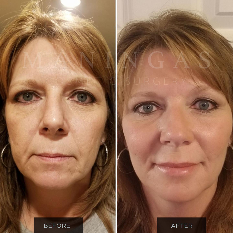 Discount facial fillers alpharetta — pic 6