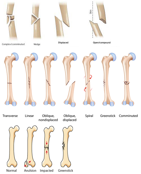 Types Of Fracture Diagram - DIY Enthusiasts Wiring Diagrams •