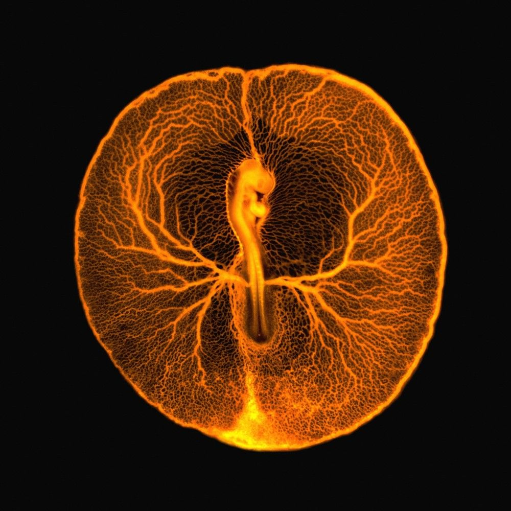 Chicken embryo vascular system - This fluorescence micrograph shows the vascular system of a developing chicken embryo. At this stage of development, the embryo and its surrounding vasculature are a little smaller than a 5p coin. Credit: Vincent Pasque, University of Cambridge